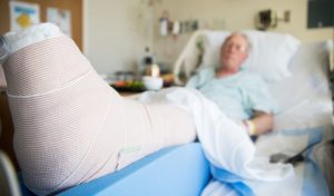 photo of a man in a hospital bed with injured leg