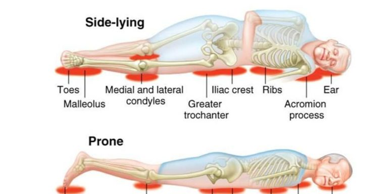 bed sores injuries diagram