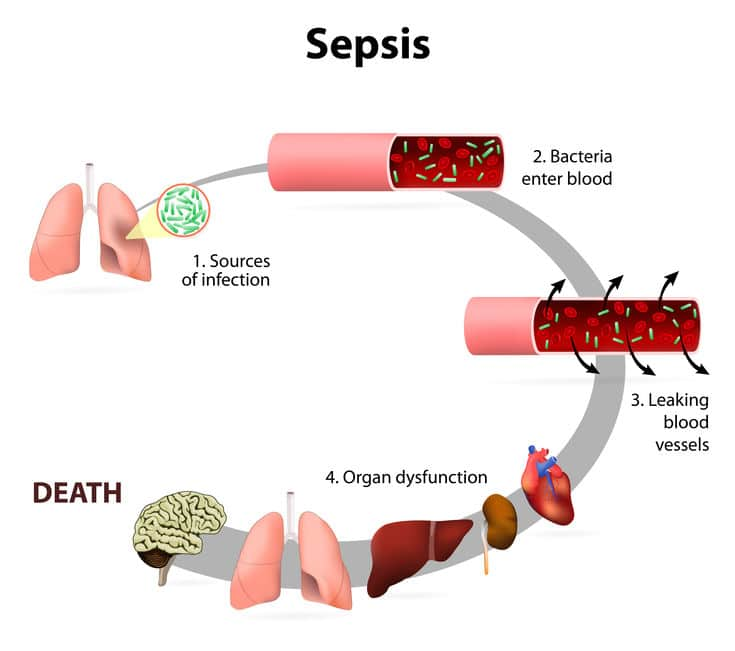Example of Nursing Home Abuse - Diagram showing stages of sepsis